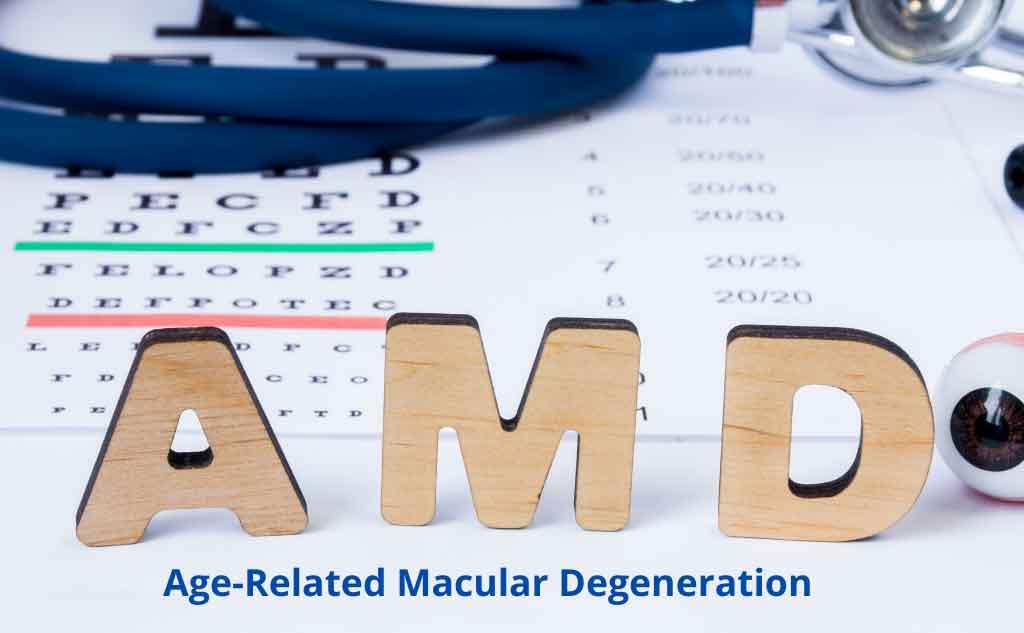 AMD - Age Related Macular Degeneration