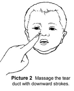 Treatment of pink eye in children by massaging tear sacs